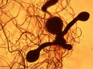 Fig. 6: Irregular sporangia of of monocentric Piromyces sp. Light microscopy of lugol stained preparation (x 400)